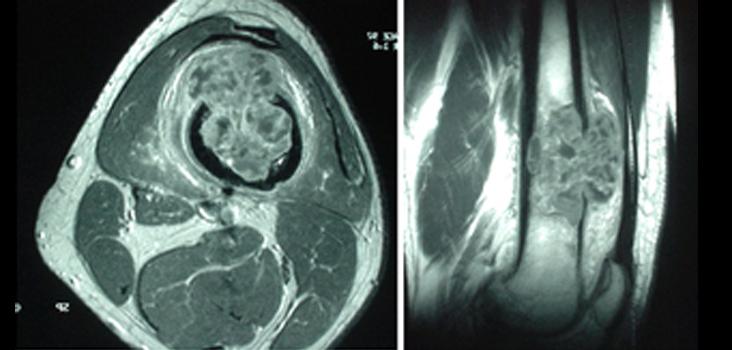 fibrohistiocitoma-maligno-primario-hueso