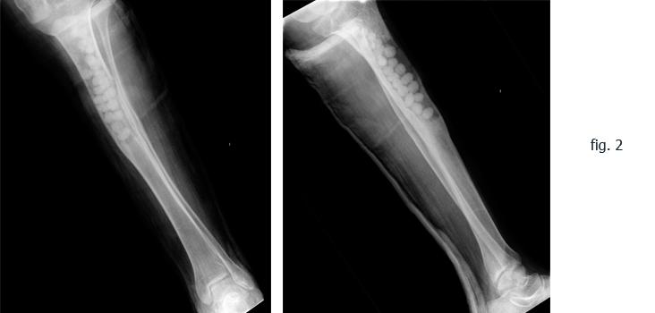 figura2-hostiomelitis-tibia-somacot