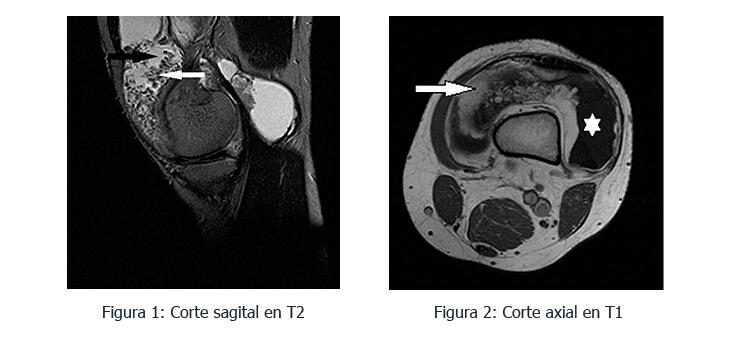 lipoma-caso-clinico-somacot-1