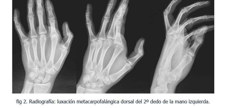 2-somacot-caso-clinico