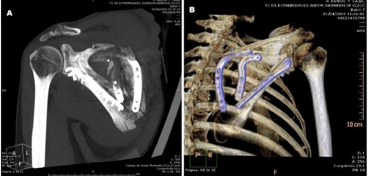 fractura-somacot-caso-clinico
