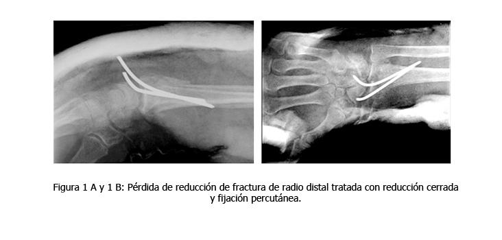 osteomielitis-caso-clinico-figura1