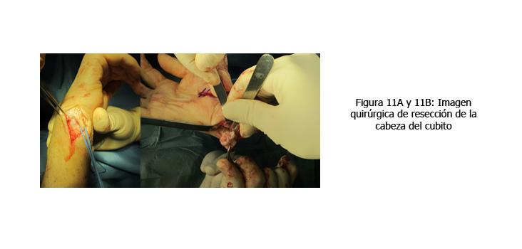 osteomielitis-caso-clinico-figura11