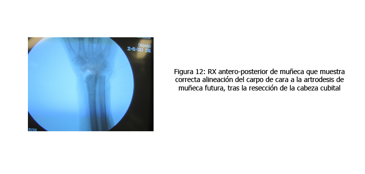 osteomielitis-caso-clinico-figura12