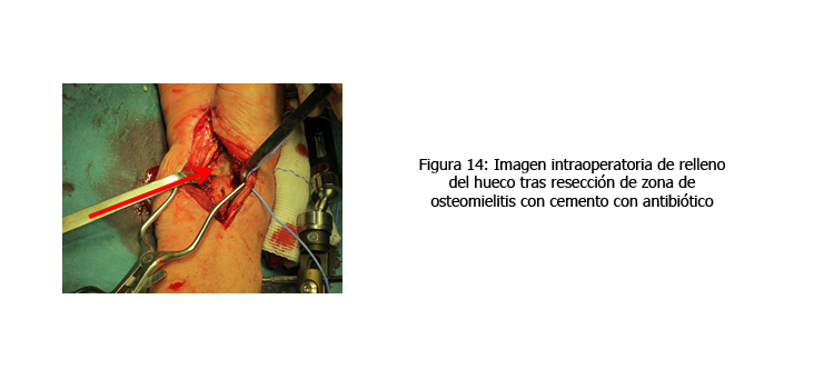 osteomielitis-caso-clinico-figura14