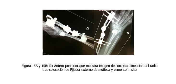 osteomielitis-caso-clinico-figura15
