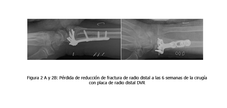osteomielitis-caso-clinico-figura2