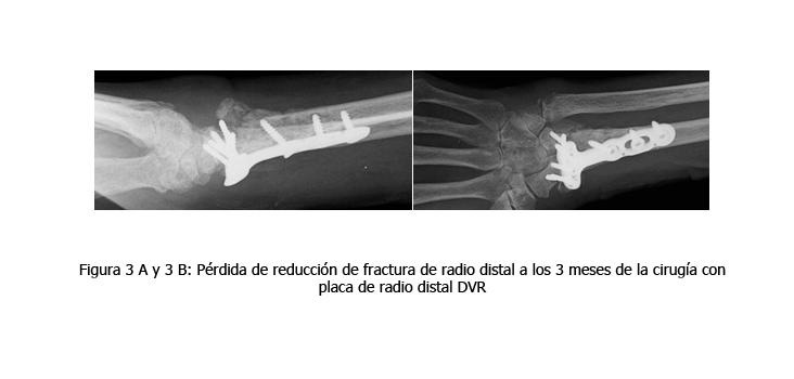 osteomielitis-caso-clinico-figura3