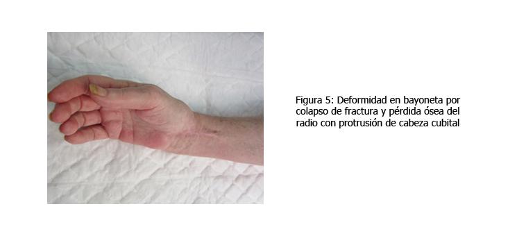 osteomielitis-caso-clinico-figura5