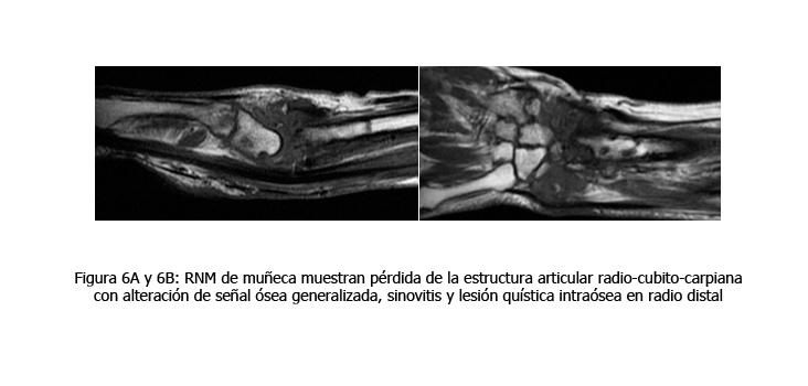 osteomielitis-caso-clinico-figura6