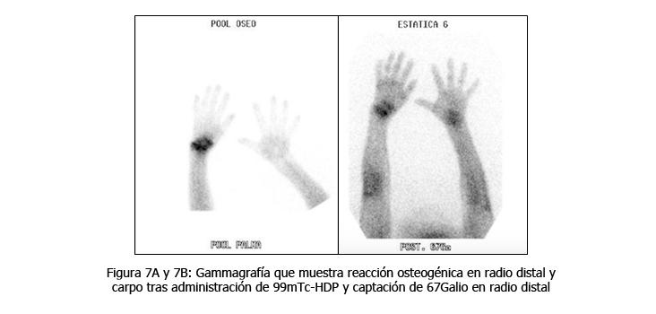 osteomielitis-caso-clinico-figura7