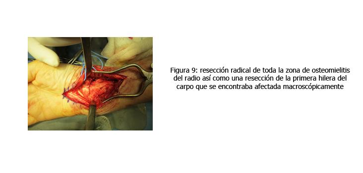 osteomielitis-caso-clinico-figura9