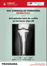 """SOMACOT celebra su Jornada de Primavera bajo el título """"Artroplastia total de rodilla en los locos años 20"""""""